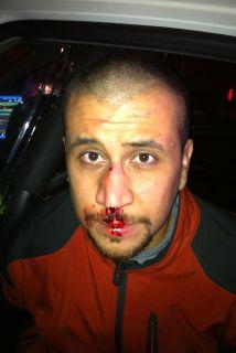 La foto de un Zimmerman herido con sangre en el rostro forma parte de la...