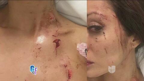 Sandra Vidal, exmujer de Pablo Montero, acusada de 'golpeadora'