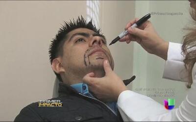 Cada vez más hombres optan por trasplantarse barba y bigote