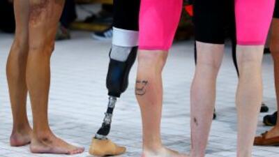 El tipo de discapacidad funcional más común es la limitación motora.