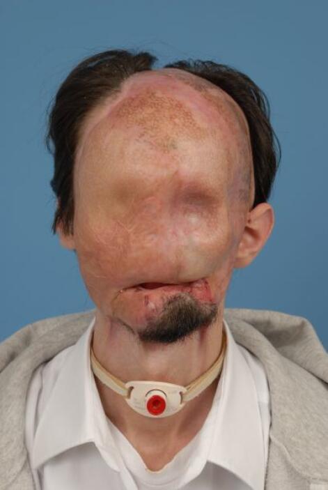 Dallas Wiens, un joven de 25 años, quedó desfigurado tras electrocutarse...