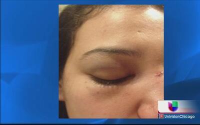 Acusan a policía de golpear a mujer en Rosemont