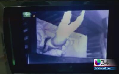 Cámaras captan imagen de niña que duerme de cabeza
