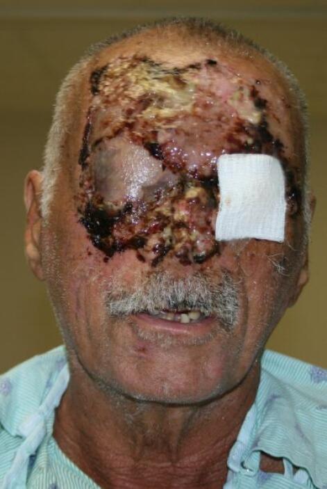 Su vida estaba en peligro sin embargo con los cuidados médicos en estos...