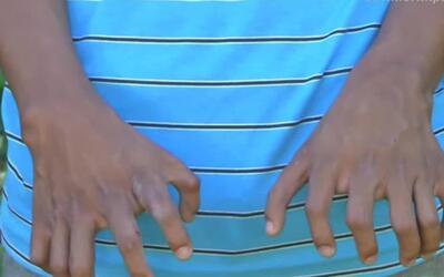 Nació con 26 dedos y lucha por sacar adelante a sus hermanitas quienes t...