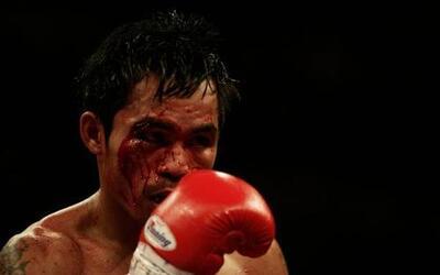 La primera derrota de Pacquiao fue contra Rustico Torrecampo el 9 de feb...