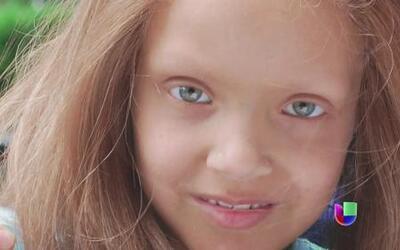 Niña de 6 años batalla por ganarle al cáncer