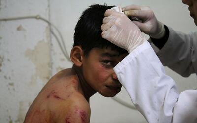 Víctima de la guerra en Siria