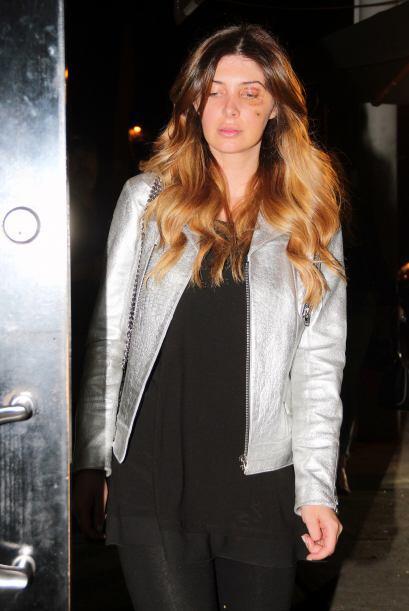 Al parecer la bella modelo fue a visitar  Lewis al hospital tras una cir...