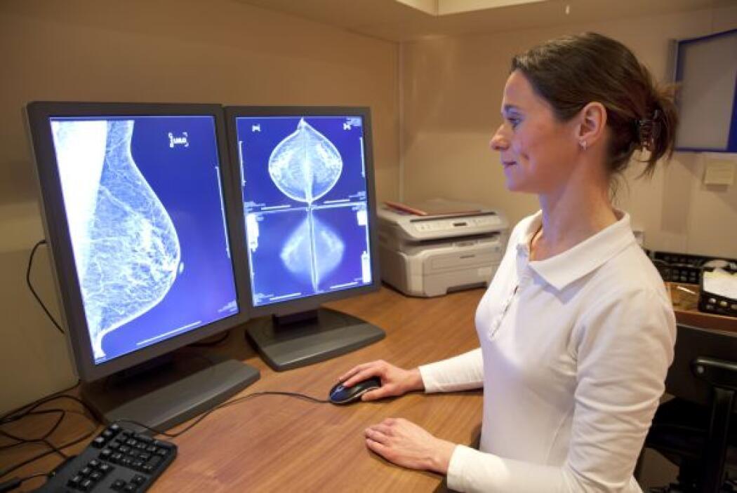 3-Mamografía para la detección del Cáncer de mamas: Las mamografías pued...