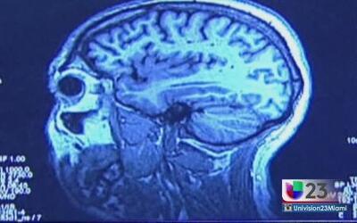 El alzheimer se apodera del cerebro según progresa
