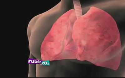 Conozca los síntomas de cáncer del pulmón