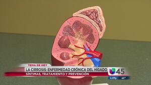 Cirrosis: enfermedad grave y crónica del hígado