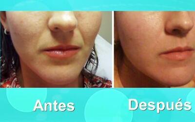 Ya puedes rejuvenecer tu piel, ¡sin cirugía!