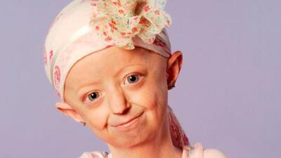 Muere Hayley Okines, la joven de 17 años atrapada en un cuerpo de más de...