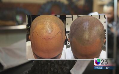 Micropigmentación, una solución para las personas sin cabello