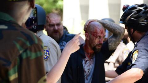 Violenta manifestación deja graves heridos en Sacramento, California