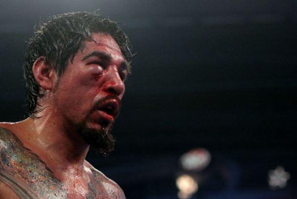 Los boxeadores a veces terminan con 'máscaras' de horror sin querer, aqu...