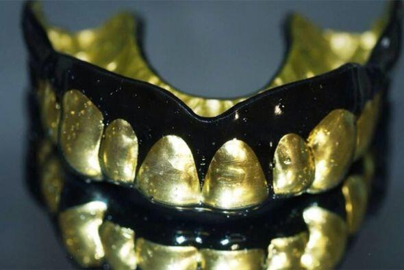 ¿Joyas para tus dientes? Para algunos amantes de la moda el 'blin...