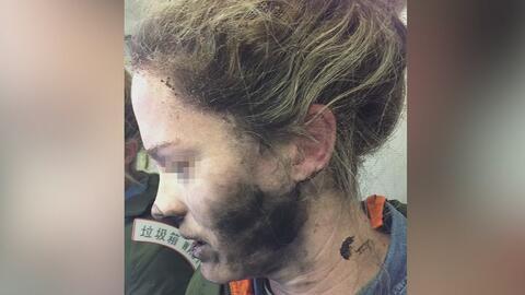 Pasajera de avión acaba con la cara y las manos quemadas al explotar sus...