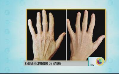 Cuida tus manos del sol y el maltrato producto de la edad