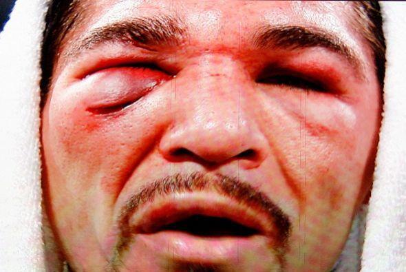 Antonio Margarito y su máscara para ir a espantar a Filipinas después de...