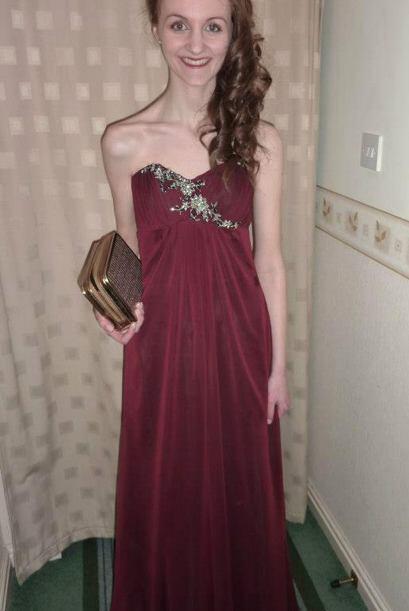 Heather Franks fue diagnosticada con anorexia cuando tenía diecis...