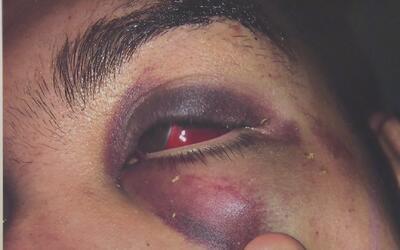 Estudiante demanda a la policía de Paterson por brutalidad policiaca