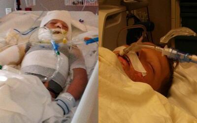 Kayden Culp de 10 años de edad sufrió graves quemaduras en...