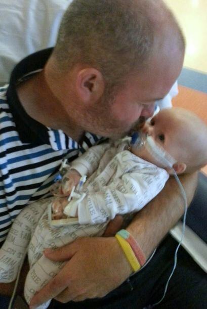 El bebé Jack con seis semanas de edad, fue sometido a la operación.
