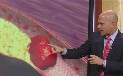 ¿Cómo se previene un infarto fulminante? El doctor Juan responde