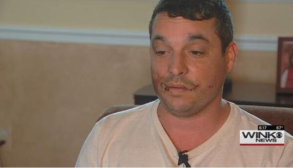 Chris Thompson perdió ocho dientes tras explotarle un cigarrillo electró...