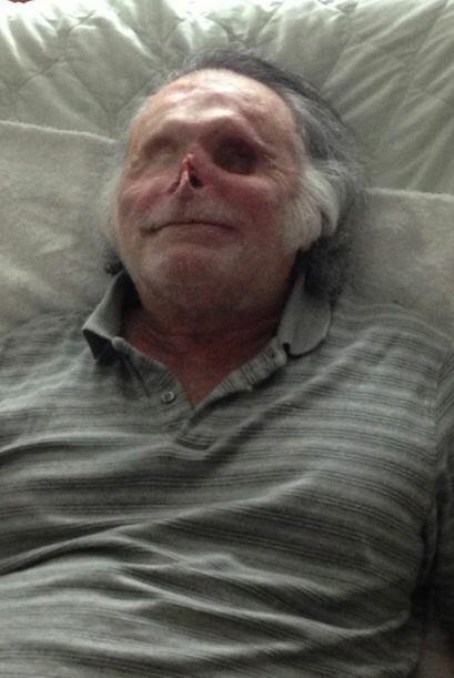 Se ha adaptado a su cegera y dice no querer más cirugías reconstructivas...