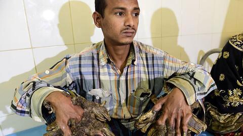 Abul Bajandar, el 'hombre árbol' de Bangladesh que padecía de un...