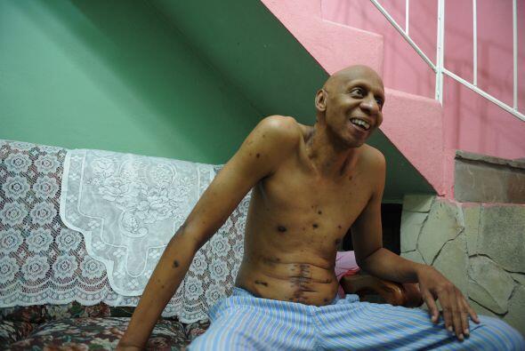 El disidente cubano Guillermo Fariñas, que acumula en su historial como...