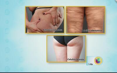 Aprenda cómo eliminar grasa y celulitis de los muslos y tonificarla