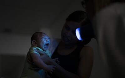 salud zika microcefalia