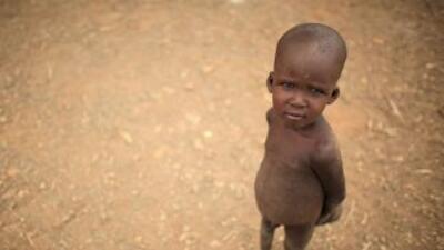 En el mundo hay unos 1,000 millones de personas que padecen hambre y la...