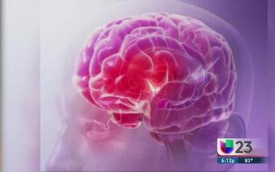 El alzheimer es condierado ya una epidemia de salud