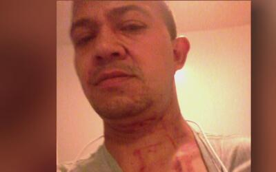 Hombre denuncia que policía de Newark ignoró su llamado por una golpiza...