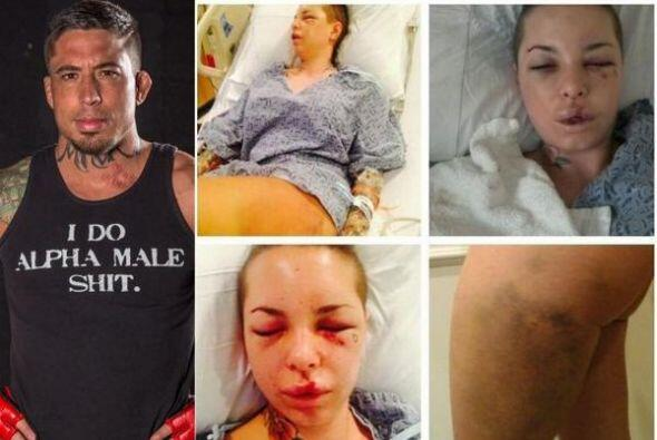 Jon Koppenhaver 'War Machine' golepáo a su novia Christy Mack, estrella...
