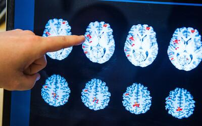 Nuevas esperanzas para combatir el cáncer de cerebro