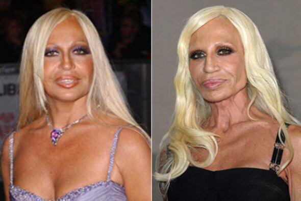 Donatella Versace nunca fue un icono de la belleza, pero definitivamente...