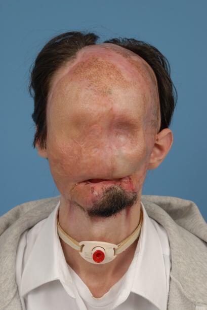 Dallas Wiens, un joven de 25 años, quedó desfigurado tras...