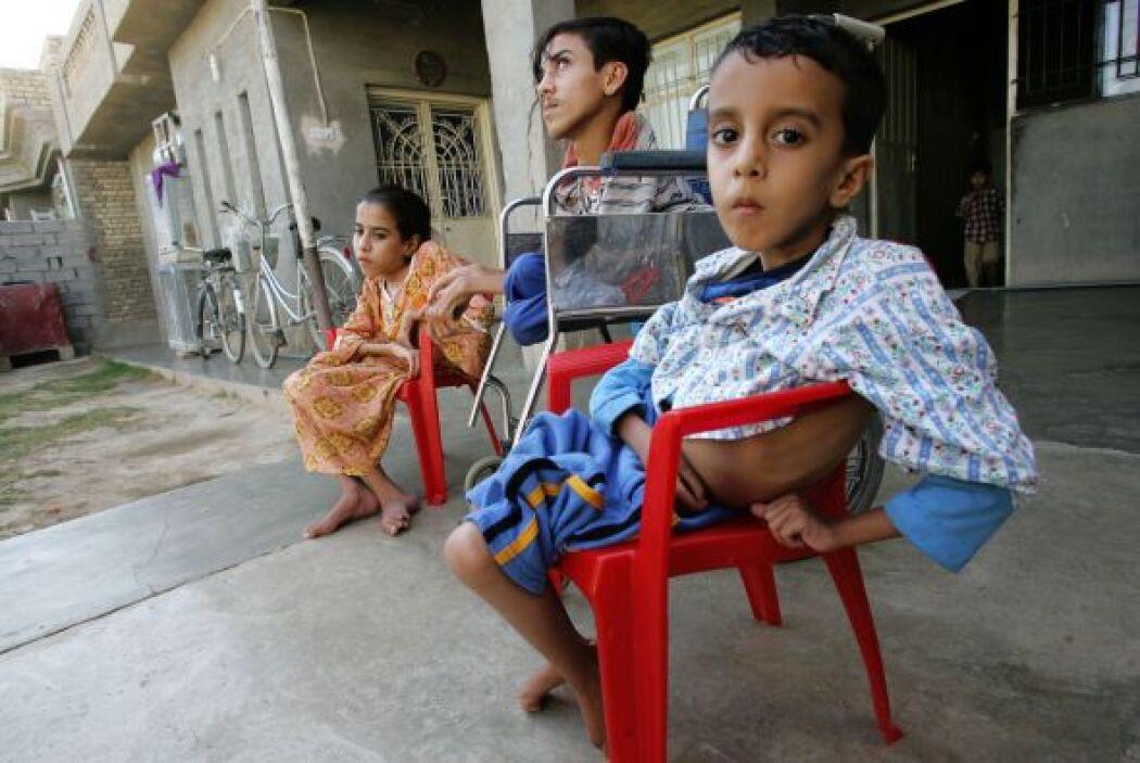 Se desconoce el número de niños que ha sido herido por la guerra. Muchos...
