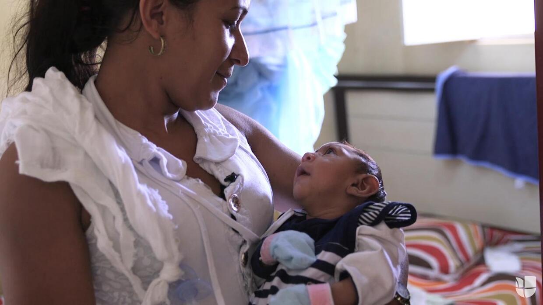 Zika en Brasil: la lucha de una madre y su bebé con microcefalia