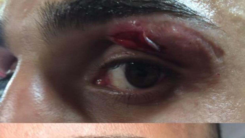 Malignaggi pospusó pelea por lesión (Foto: Twitter).