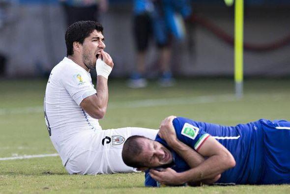 Inclusive, Suárez se tiró y se tocaba los dientes. Por supuesto, ahora v...