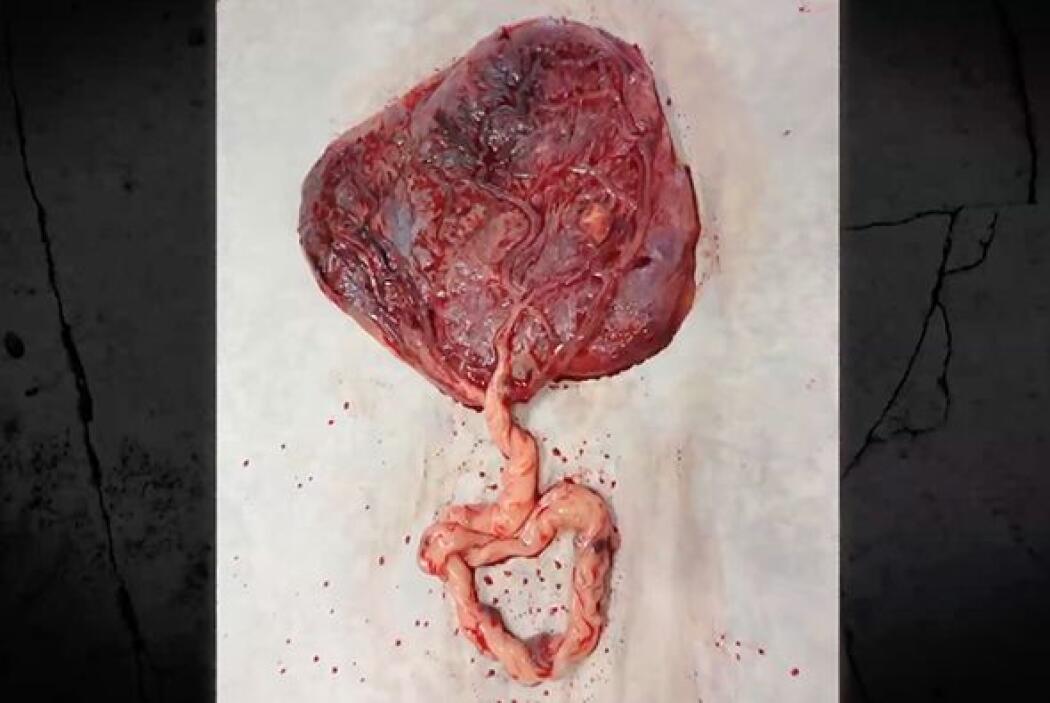 La mayoría de los mamíferos se comen su placenta, pero hay quienes creen...