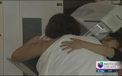 ¿Cómo prevenir y detectar el cáncer de mama?